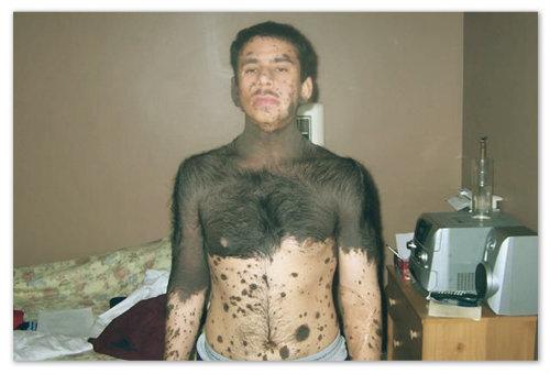 атавизмы человека фото